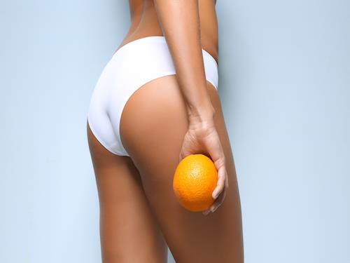 Pozbądź się cellulitu! Dieta i suplementy, które pomogą w walcez cellulitem.